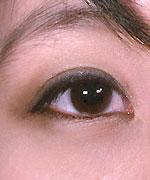 http://www.drmeronk.com/asian/asian-eyelid-photos.html